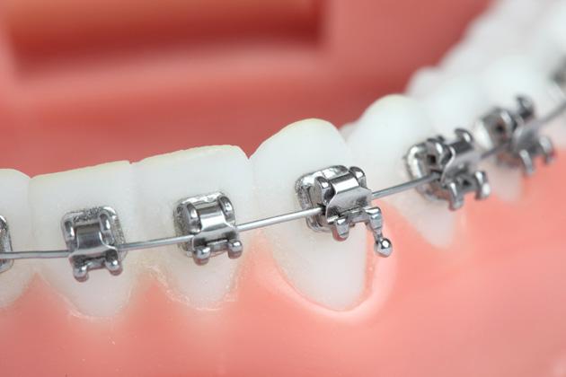 Fixed Braces Zachie Fourie Orthodontics